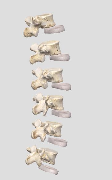 Lumbar Spine (1)