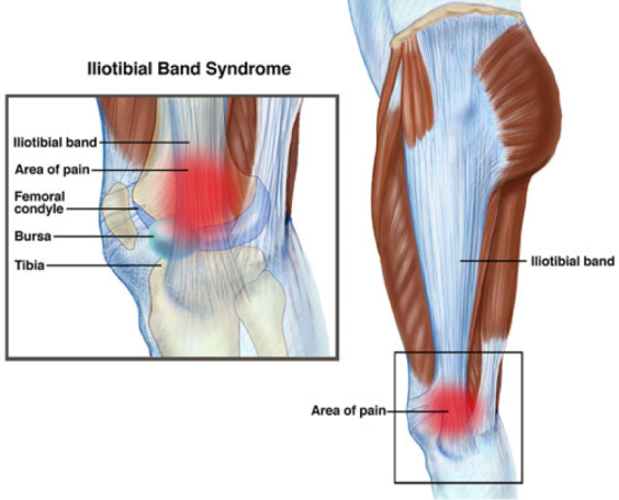 What Kind Of Knee Pain Do You Have Squat University