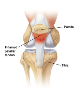 patellar tendon (1)