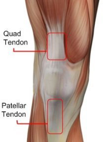 Fixing patellar quad tendon pain squat university patellar tendonitis ccuart Choice Image