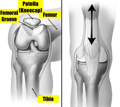 Femoral Groove
