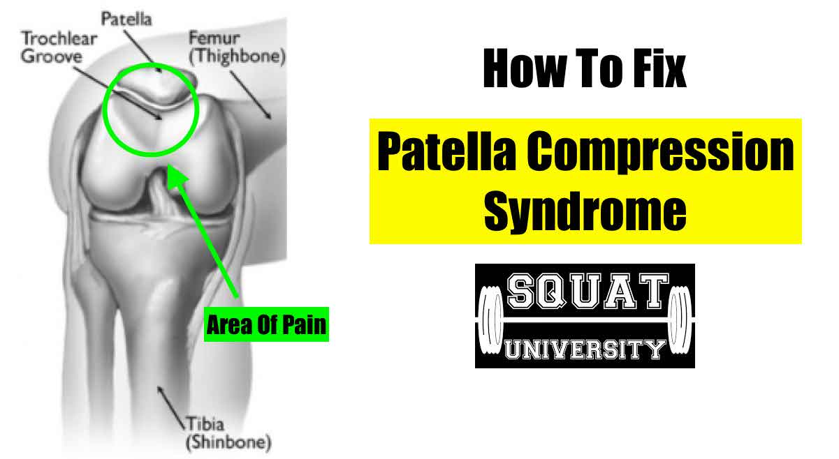 How To Fix Patellar Compressive Syndrome Squat University