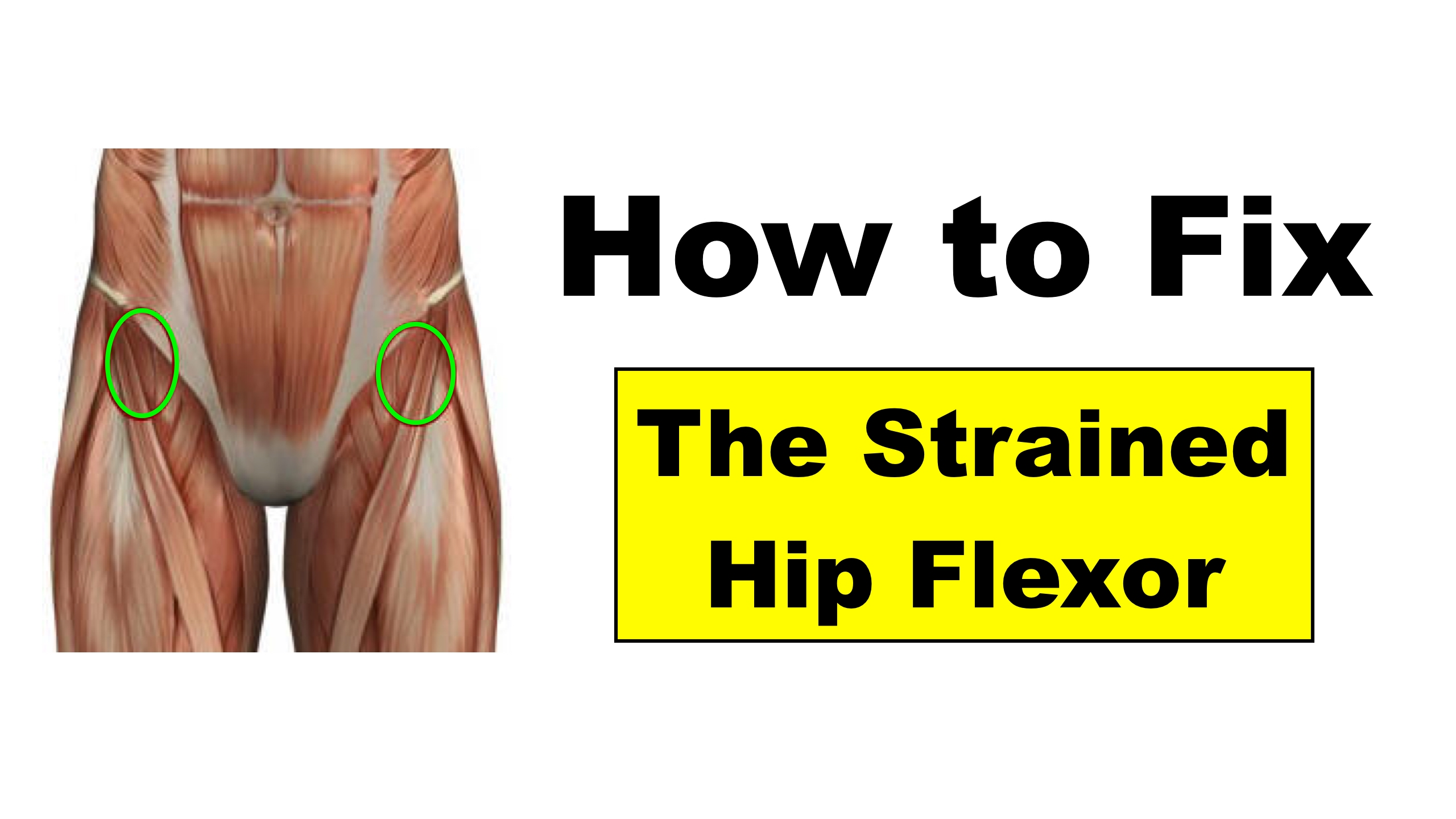 2948c83029 Fixing Hip Flexor Pain – Squat University