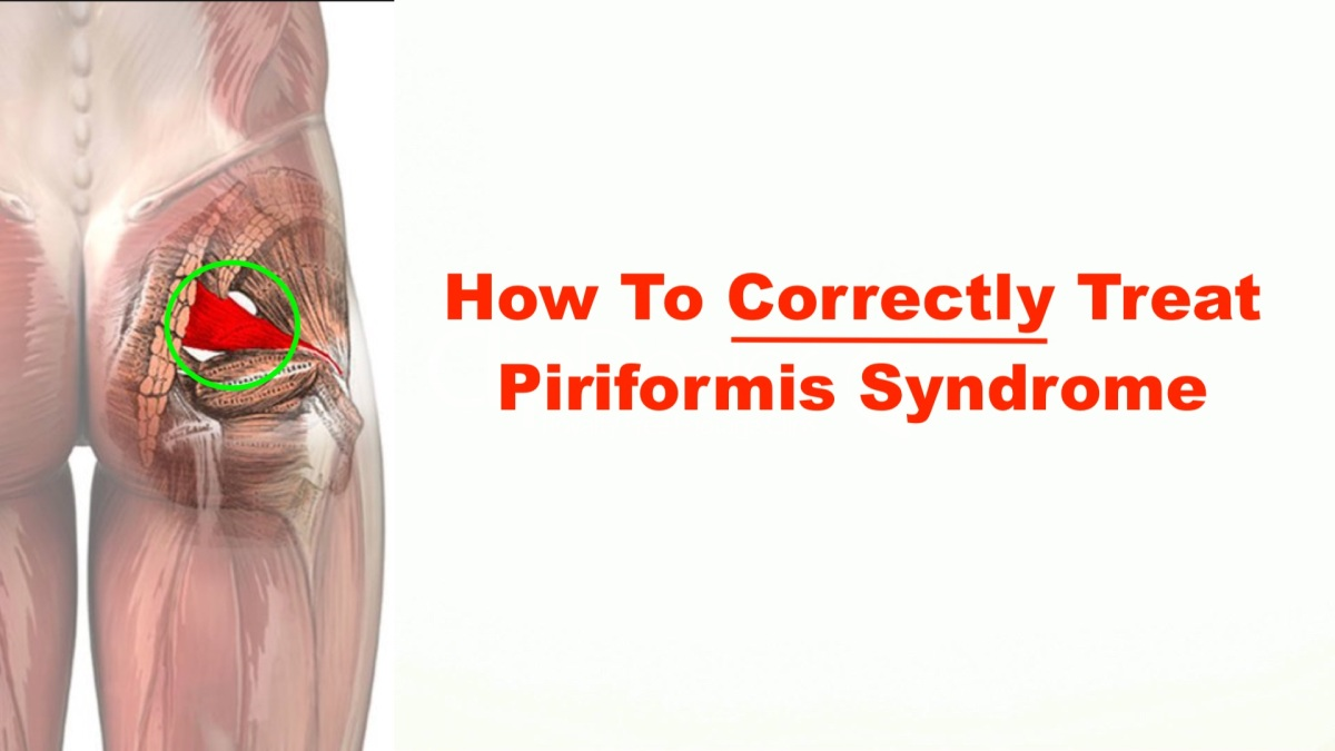 how to correctly treat piriformis syndrome ndash squat university diagram of leg pain diagram of lower leg pain #11